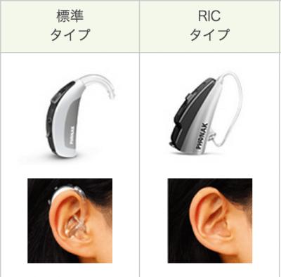 一般的な耳かけ形とRIC補聴器の違い