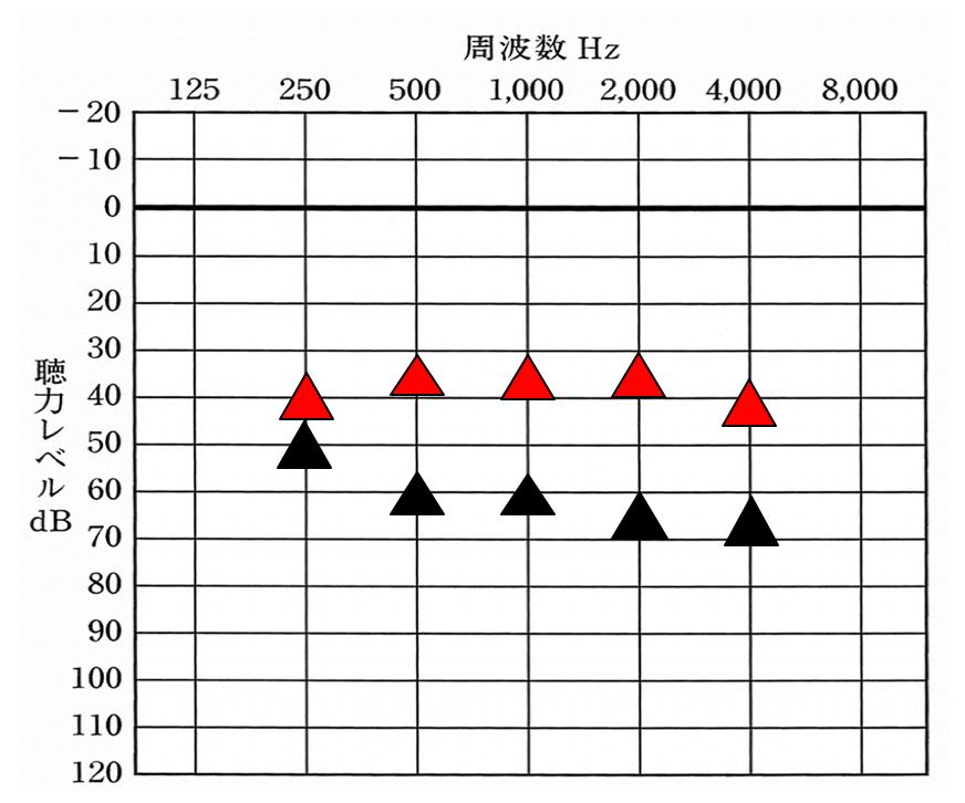 こちらの見方は、聴力図と同様。上にあるとあるほど聞こえやすくなる。各周波数ごとに聞こえやすくさせる部分は、聴力ごとにある程度、決まっている。
