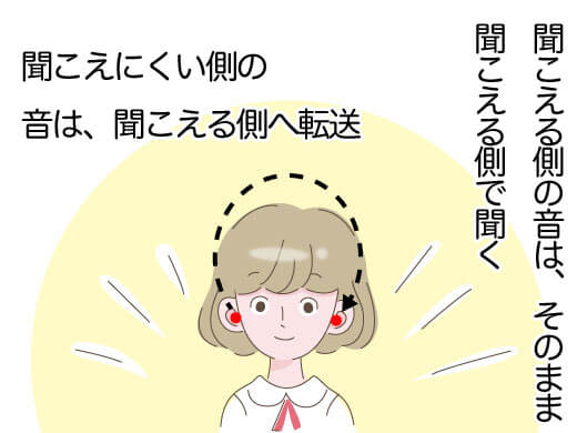 クロス補聴器のイメージ。聞こえない耳側にきた音を聞こえる耳側で聞こえるようにしてくれるのが、クロス補聴器。残念ながら、聞こえなくなった耳側に音を入れても、改善しない方々のために作られた機器になる。