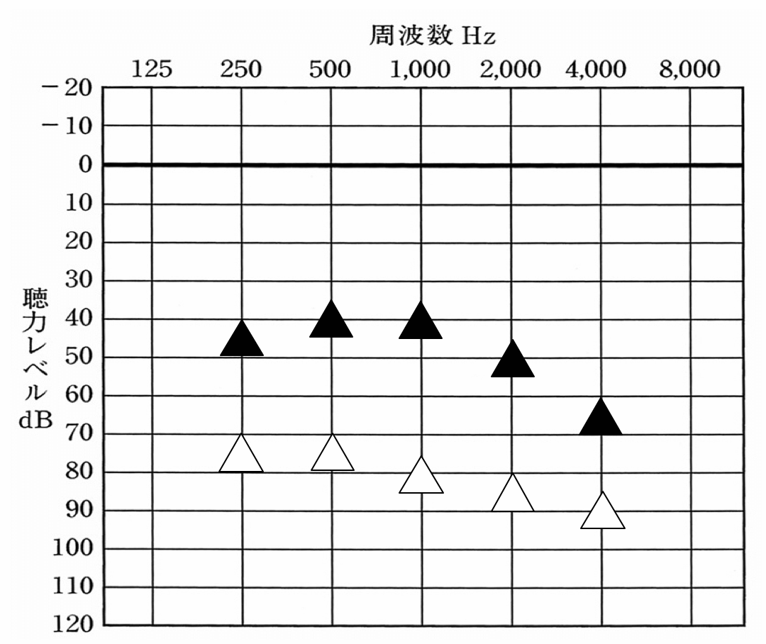 実際に測定するとこのような図になる。見方としては、▲が補聴器を装用した状態の効果。△が補聴器を装用していない時の効果。