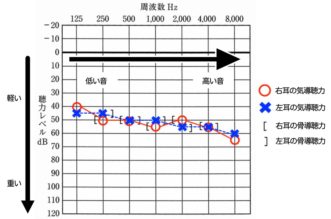 いくつか記号があるが、基本的に見るのは、気導聴力の○、×。この数値がどの位置にあるかで、どのくらい聞きにくいのかがわかる。