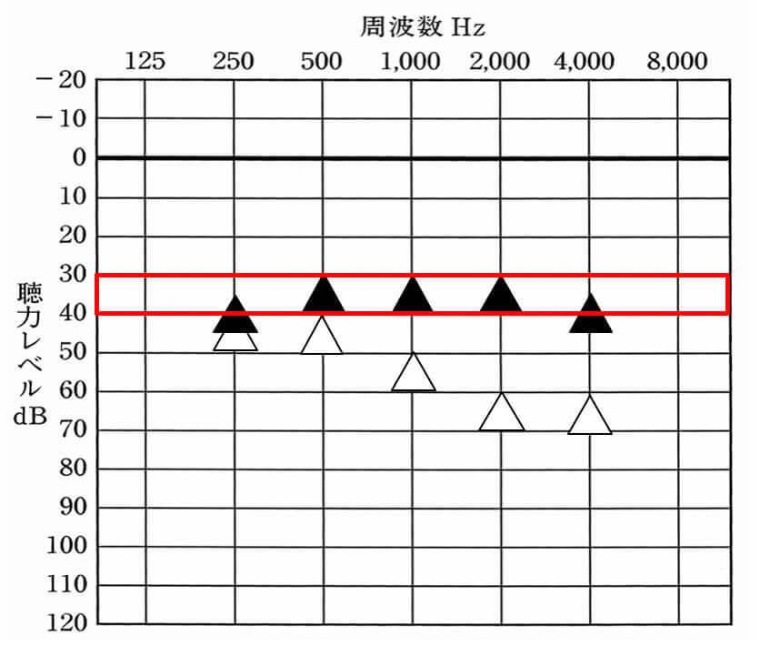 ▲が補聴器装用時。△が補聴器非装用時。補聴器は、補える人でだいたい30〜35dBくらいまで補える。