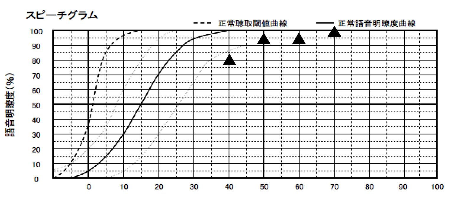 補聴器を装用した状態の語音明瞭度測定の結果。良い評価は出ているが、正直、少々、覚えてしまっているところもあるので、参考程度に。