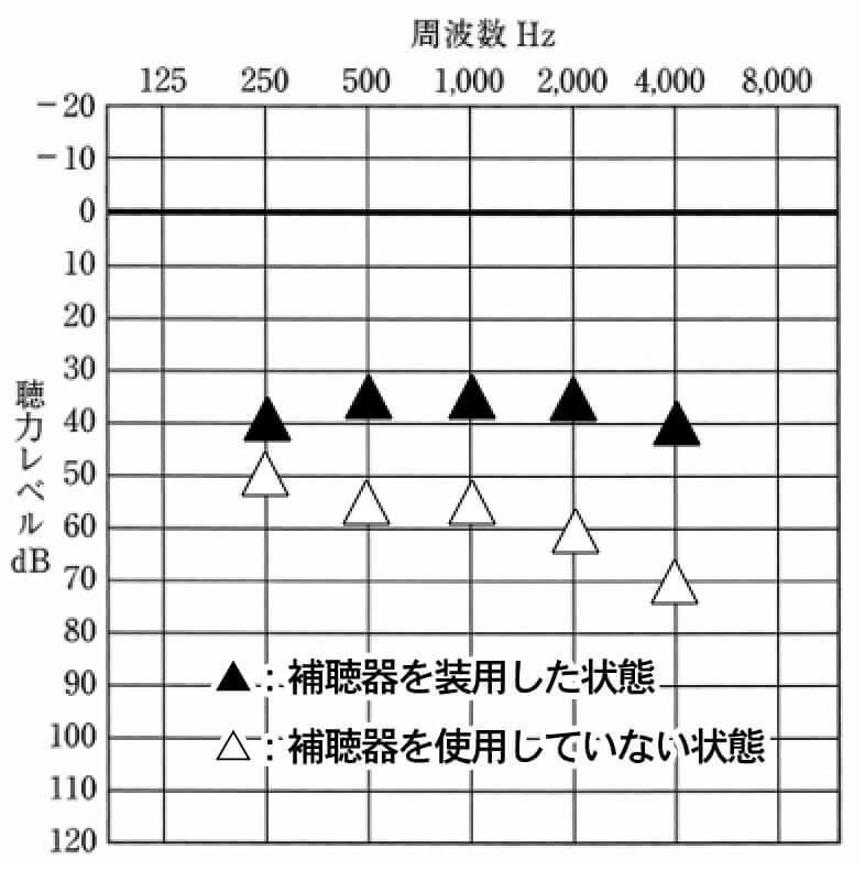 基本的な音場閾値測定の見方
