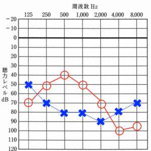 audiogram 7