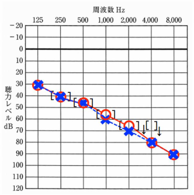 老人性難聴のオージオグラム例。高い音が低い音より聞こえにくくなる傾向がある