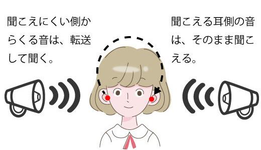 クロスの聞こえのイメージ。聞こえにくい耳に装用したクロスが、聞こえる耳に装用した補聴器に常時、音を転送してくれる。