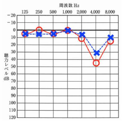 騒音性難聴の聴力図(オージオグラム)