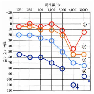 騒音性難聴の聴力例、①〜④まで、徐々に低下してくる傾向がある