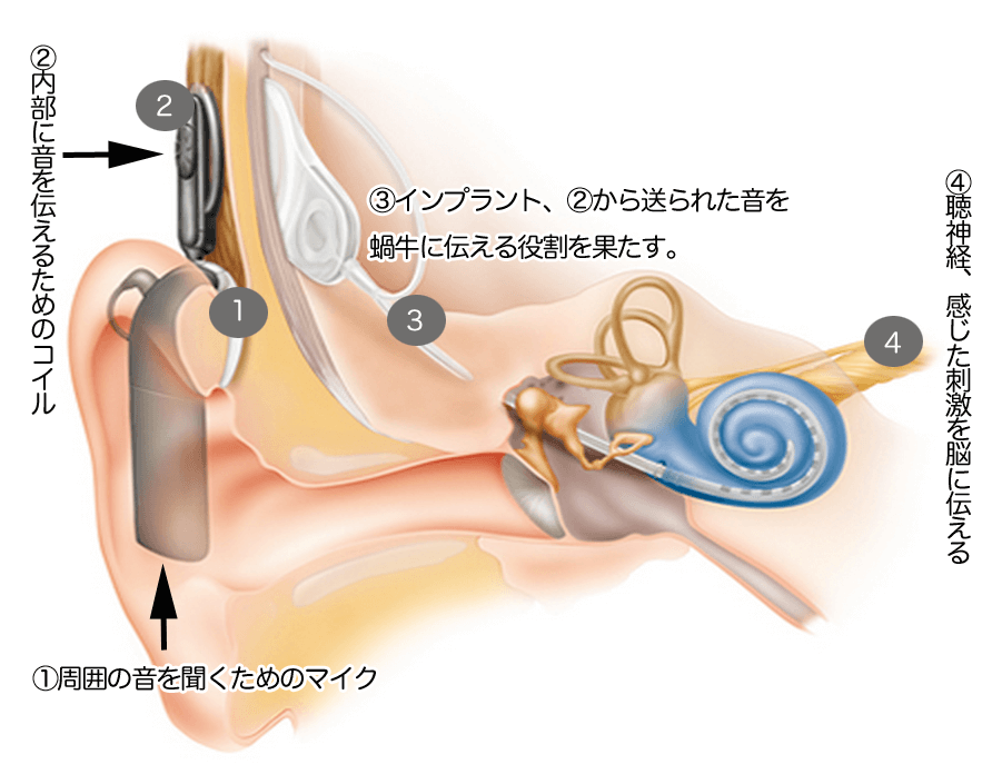 人工内耳の図。人工内耳は、外部の機器と内部のインプラントのの二つにより、成り立っている。