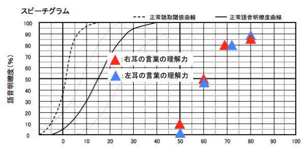こちらは、語音明瞭度測定の結果。補聴器の世界には、音声の理解度を調べる測定がある