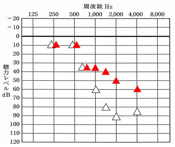 補聴器で改善を目指す数値は、△の赤いもの。白い△は、補聴器を装用していない時の聞こえ。