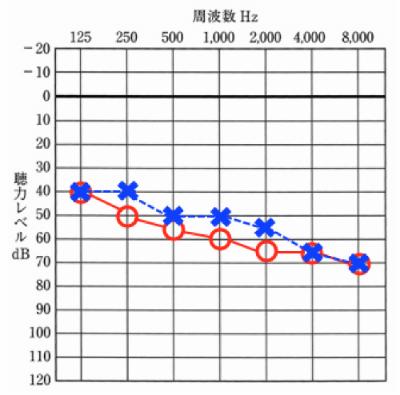 聴力が記載されている図をオージオグラムと言います