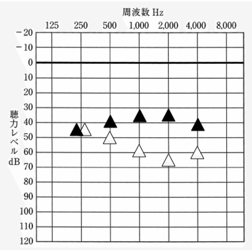 私の測定図。補聴器装用時となしの違い