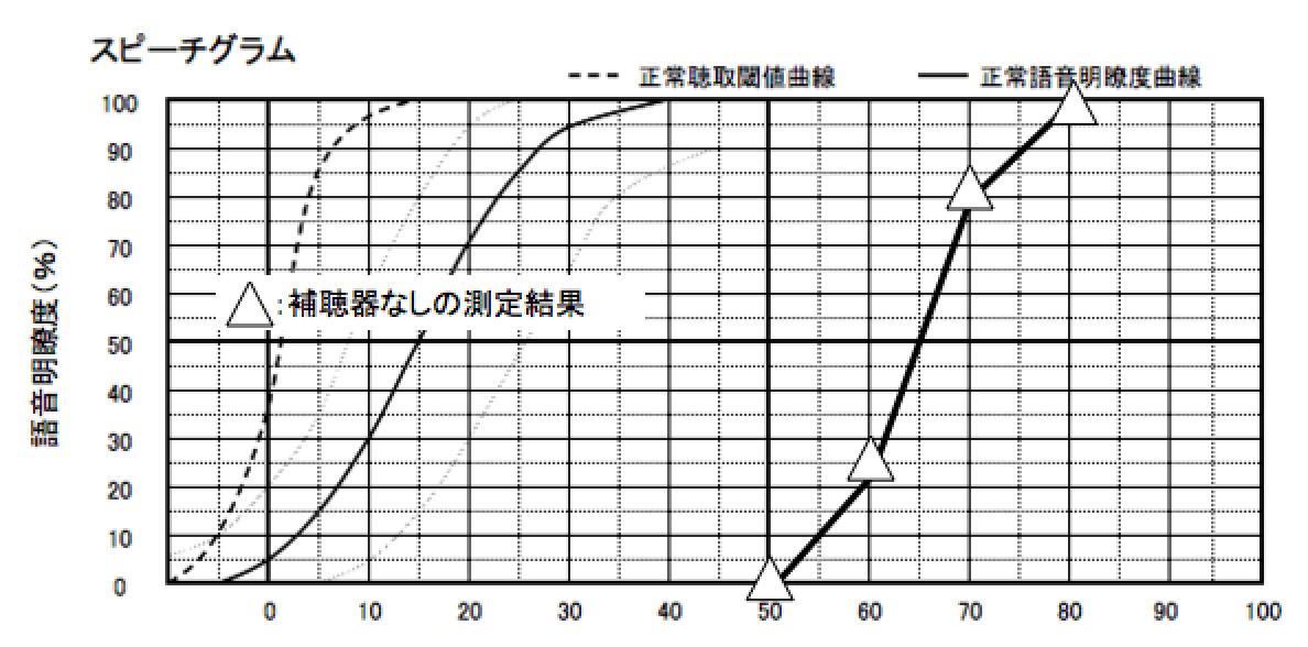 私の耳の語音明瞭度測定結果、ヘッドホンではなく音場での測定結果