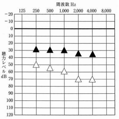 音場閾値測定のデータ図
