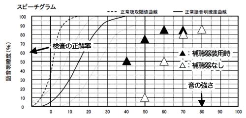 語音明瞭度測定結果の見方