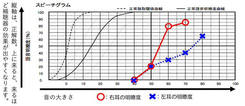 数値を見比べてみますと、右側の方が、簡単に数値が伸びていることがわかります。それだけ、右側は、音を入れた時に言葉が聞きやすくなる可能性が高いことを示しています。