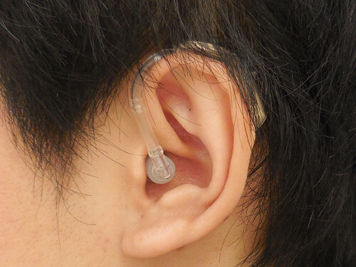 耳にかける補聴器が耳かけ形。形状は少し大きくなるが、操作性は、良い傾向がある。