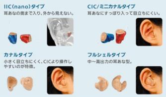 耳あな形補聴器の形状まとめ