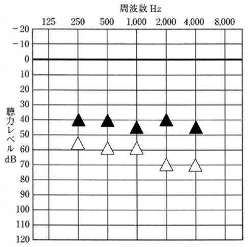 音場閾値検査結果