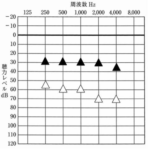 音場閾値測定結果