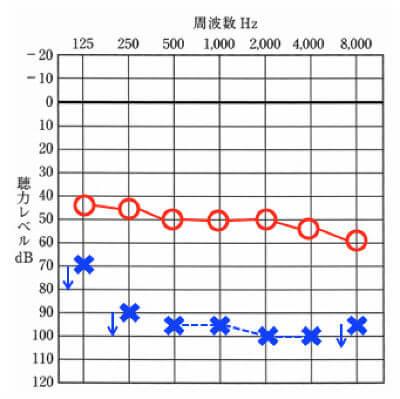 左右の聴力が似た波形を持つタイプ