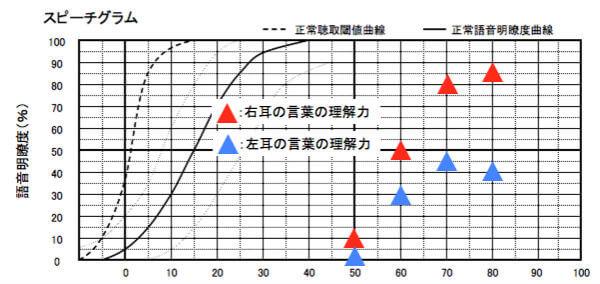 各耳の語音明瞭度を表す図