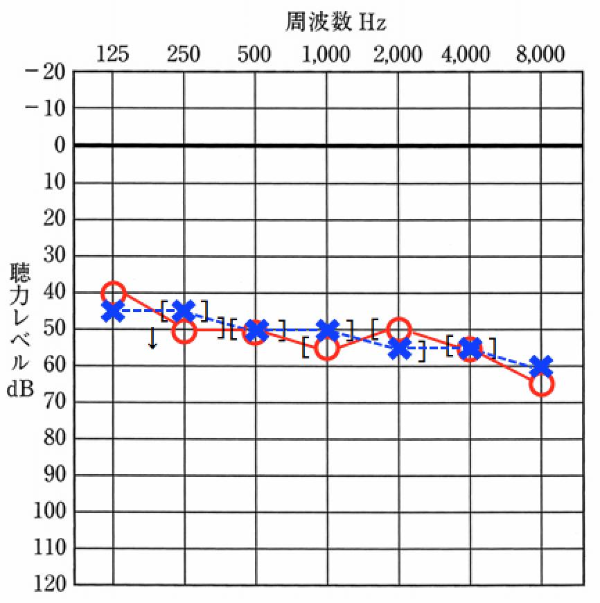 オージオメーターで計った聴力を記入するオージオグラム