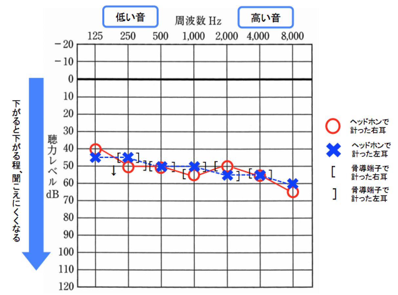 オージオグラムの数値の見方