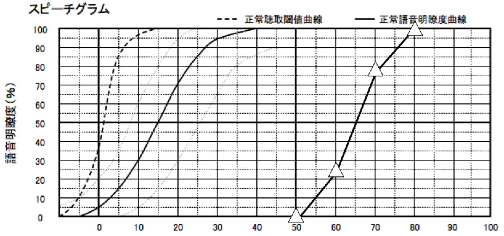 私の語音明瞭度測定結果(補聴器なし、スピーカー使用)