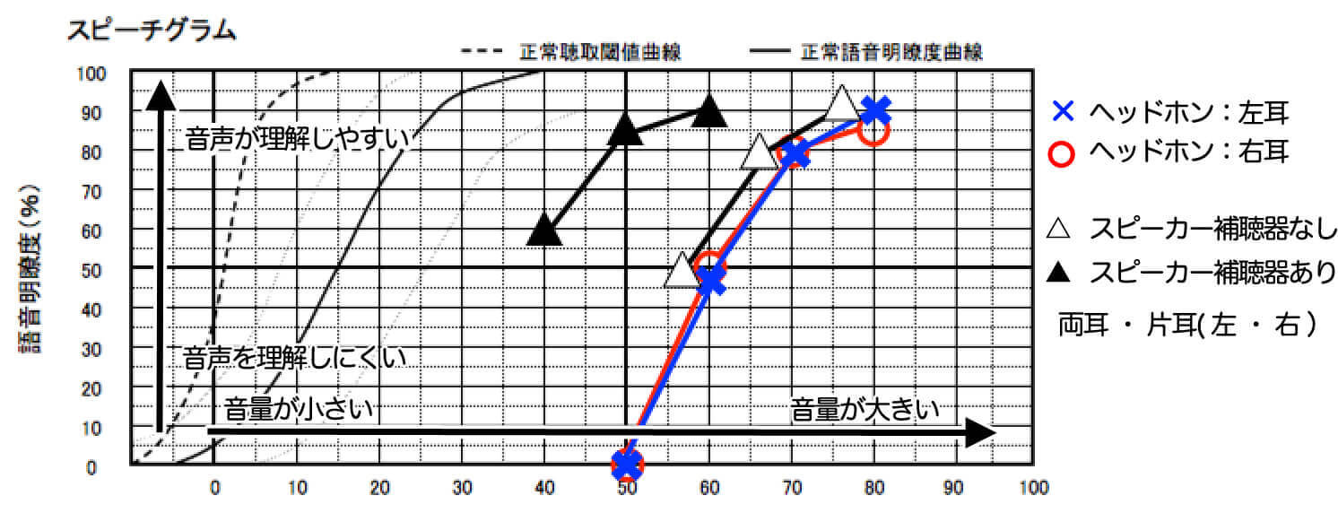 語音明瞭度測定の見方、縦軸と横軸が見れるようになるとよく理解できるようになる