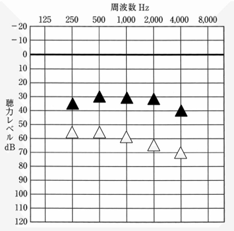 主な見方は、オージオグラムと同じで、▲が補聴器を装用した状態、△が補聴器なしの状態を表す。