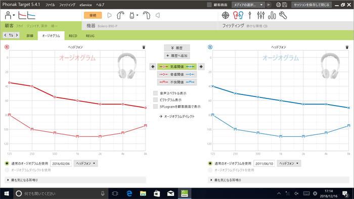 補聴器は、基本的に聴力を入力し、設定を行なっていきます。