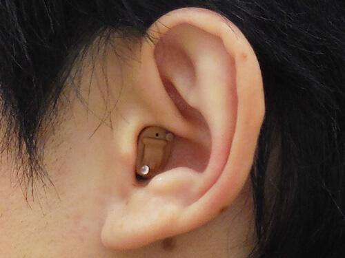 CIC補聴器の装用図。耳の穴の中に入る補聴器である