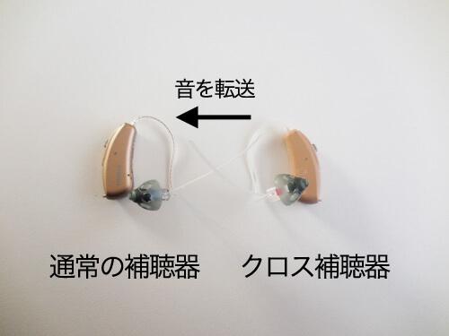クロス補聴器は、クロスに来た音を通常の補聴器に転送させる