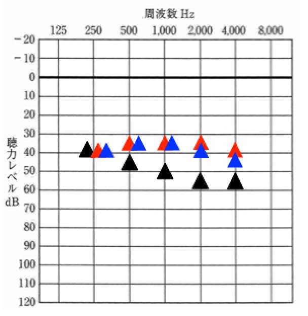 数値で表現するために音場閾値測定を例に