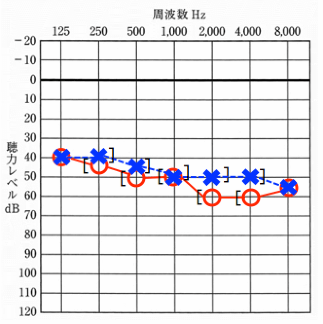 聴力測定をした結果の例。