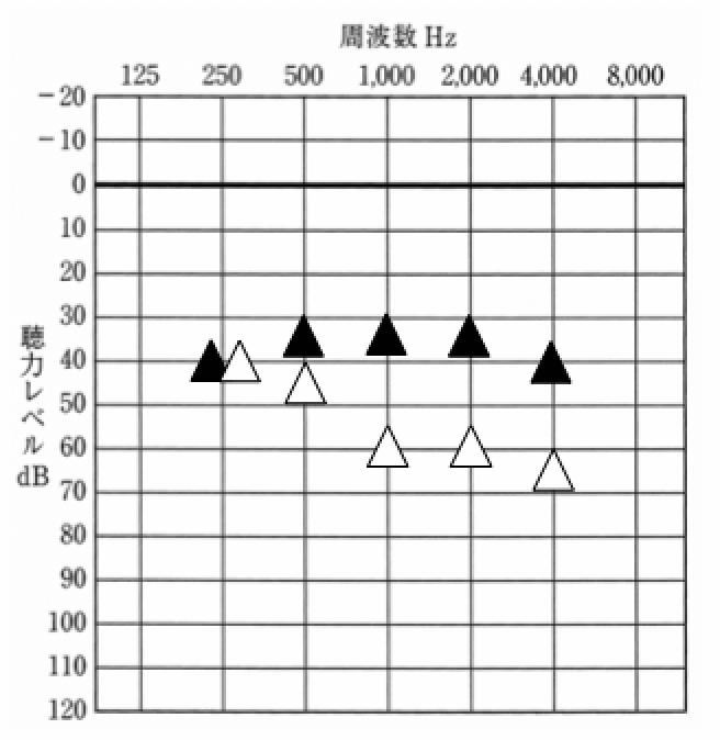 ▲が補聴器装用時、△が補聴器なし。データの見方は、聴力図と同じ