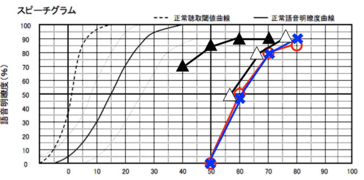 補聴器を装用した状態まで測定した図。こんな感じに色々と見れます。