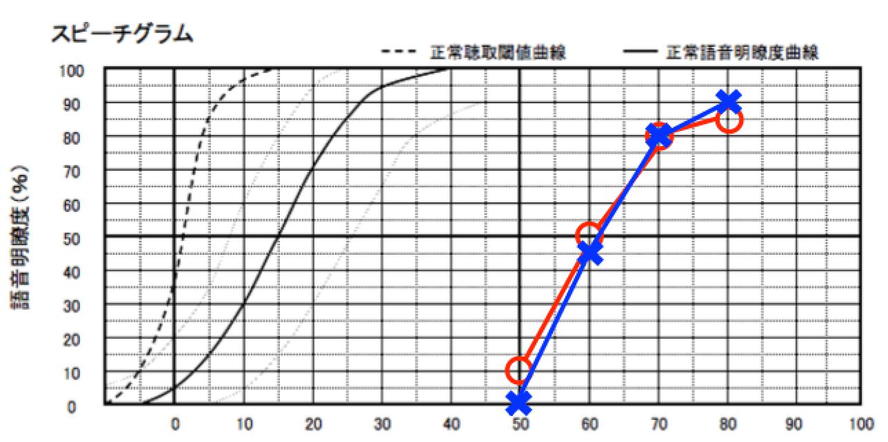 ヘッドほんで測った語音明瞭度測定。○と×は、それぞれ右と左を表す
