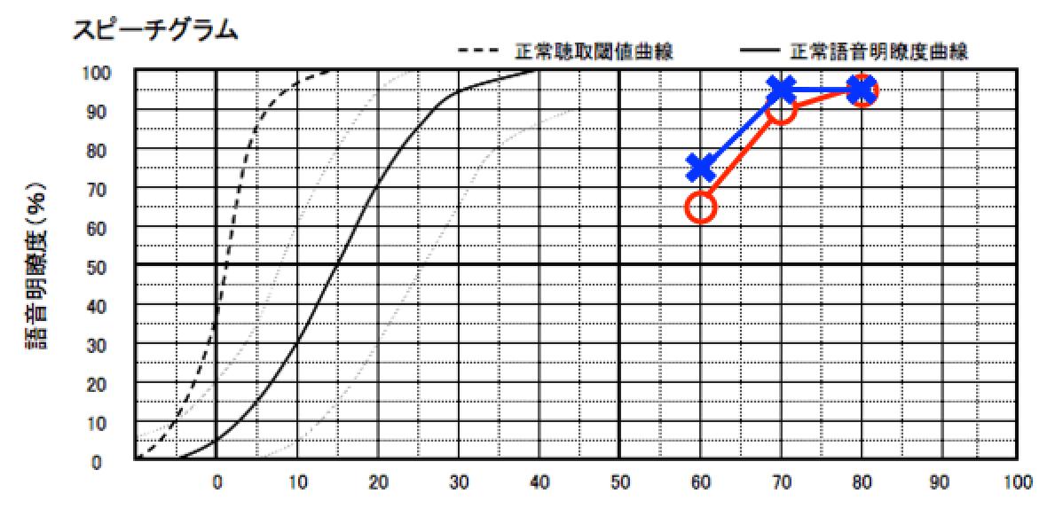 こちらは、私の耳をヘッドホンで語音明瞭度測定をしたもの。○が右耳、×が左耳。