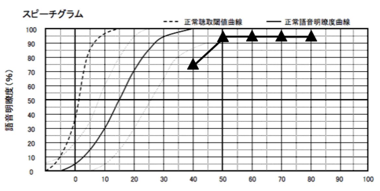 私の語音明瞭度測定から出す音場、語音の目標値