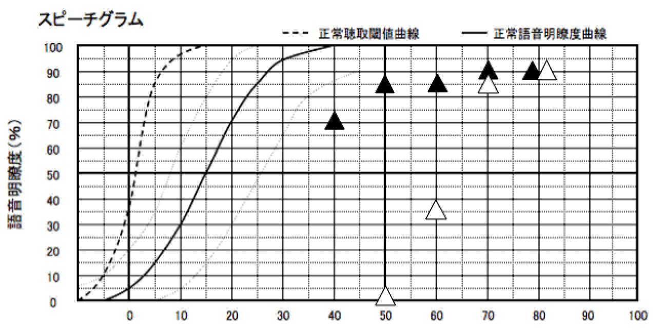 音声の理解度を調べる測定が、語音明瞭度測定