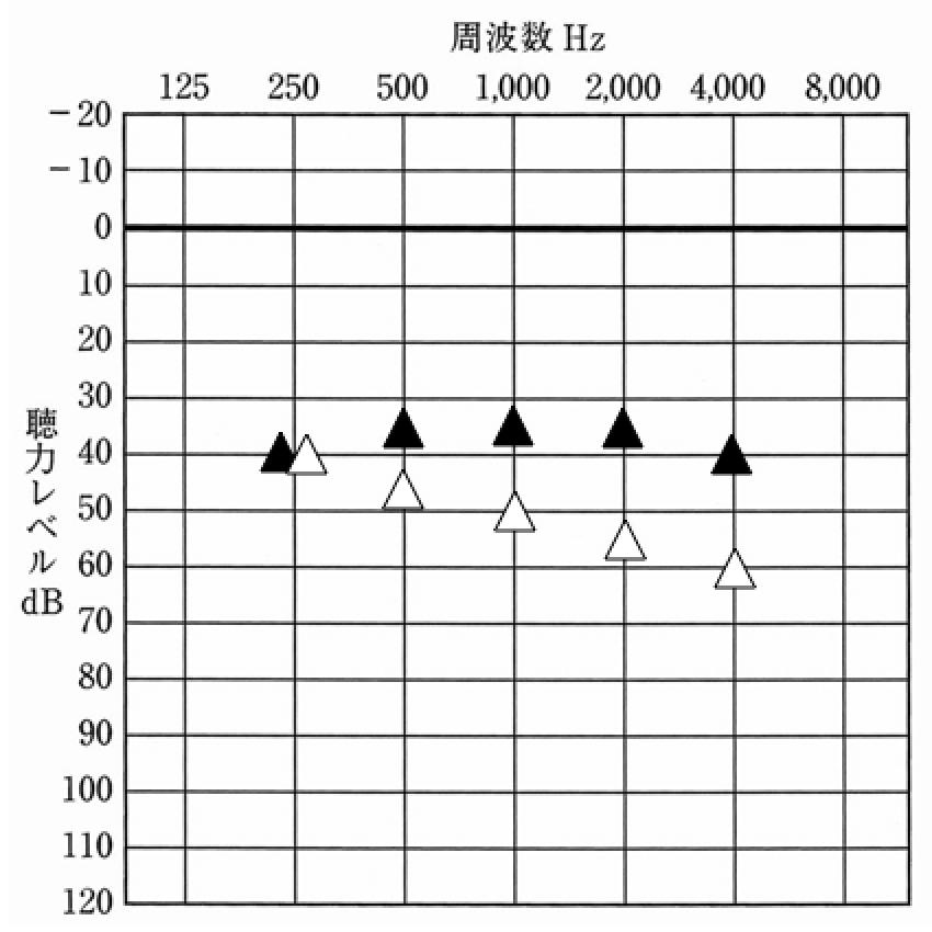 補聴器を装用した状態の聴力測定版。そのため、使われる表も聴力測定と同じ