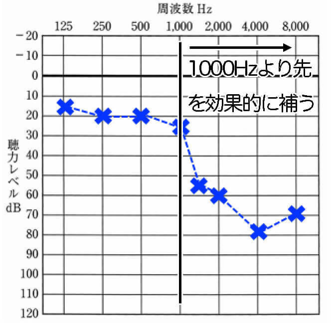 この補聴器が合うのは、1000Hzまで正常で、それ以上の高い音が聞きにくいケース。