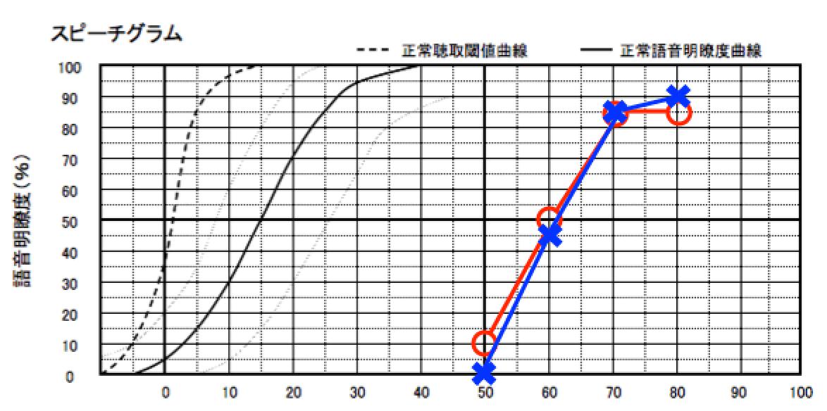 語音明瞭度測定とは、このような図で表現されます。縦が正解率、横が、音の強さです。例により、この図もイメージです。