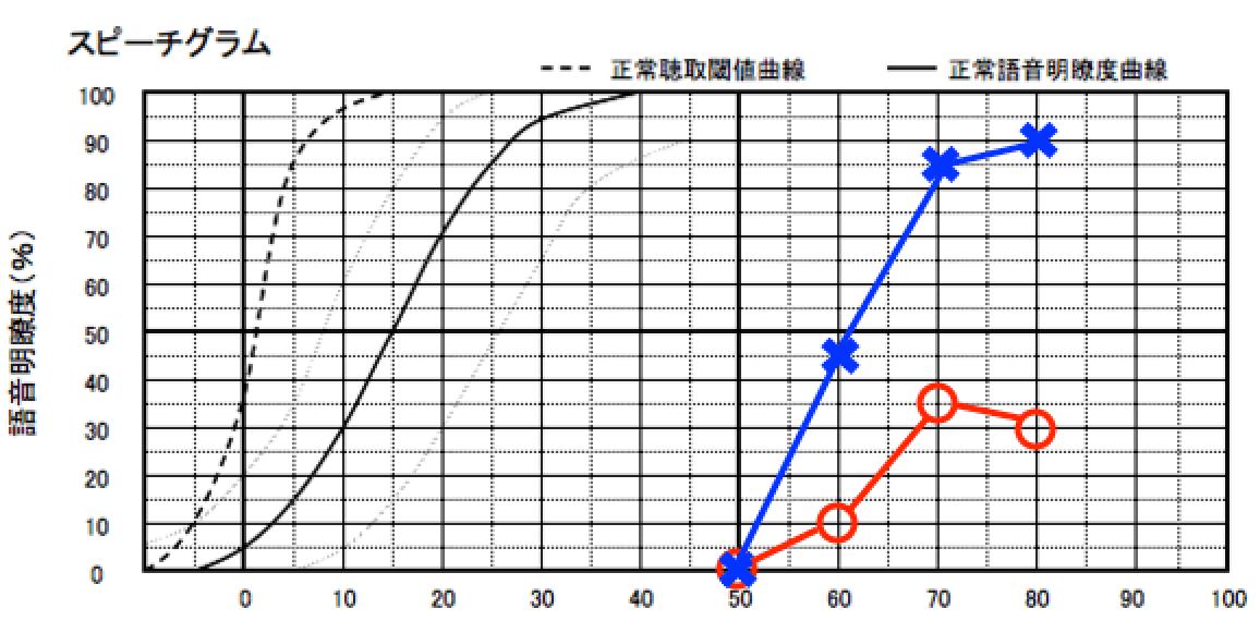 左右で耳の明瞭度が異なるケース。左側は、90%だが、右側は、35%。中には、このようなケースもある。当然だが、明瞭度の低い耳に補聴器を装用しても効果は薄い。