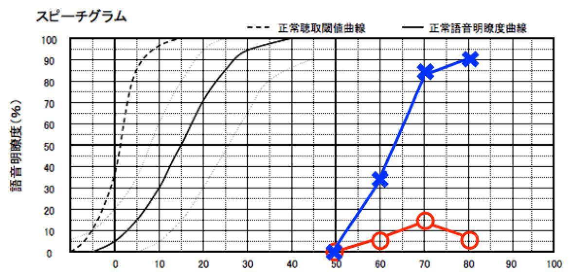 こちらは、右側だけ(○が右)、音を大きくしても、音の理解に繋がっていない事を示す。音を大きくしても理解に繋がらない場合、補聴器で音声を理解する事はできない