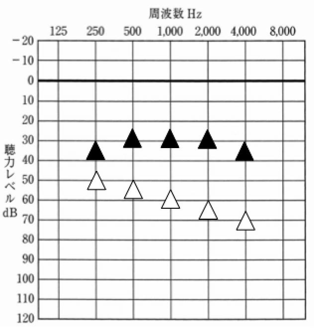 音場閾値測定とは、補聴器で聞こえを補った際、どのように補えているのかを確認する測定。耳あなの方が結果がよい傾向がある
